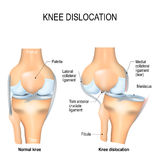 Knee dislocation and normal. Stock Image