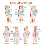 Knee Dislocations - medical vector illustration diagrams. Anatomical knee injury types scheme. Physiotherapy educational information Stock Photo