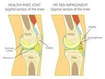 knee_Fat垫侵入的解剖学由于伸直过度 图库摄影