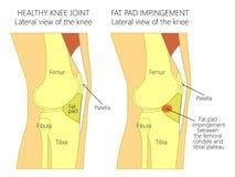 knee_Fat垫侵入综合症状的解剖学 库存图片