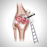 Knee joint abstract treatment. Procedure illustration. Doctor with screwdriver and gears in the joint Royalty Free Stock Photography
