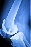 Knee joint implant x-ray test scan Stock Image
