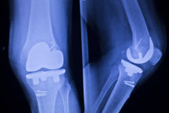 Knee joint implant xray. Knee joint implant replacement xray showing in medical orthpodedic traumatology scan Royalty Free Stock Images