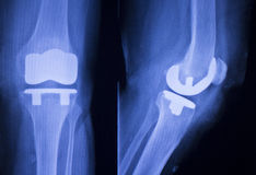 Knee joint implant xray. Knee joint implant replacement xray showing in medical orthpodedic traumatology scan Royalty Free Stock Photography