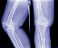 Knee joint inflammation.Osteoarthritis OA knee . film x-ray stock photo