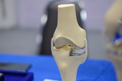 Knee joint model after replacement surgery. Artificial knee joint model after replacement surgery stock image