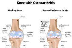 Knee Joint with Osteoarthritis Stock Image