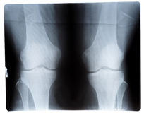 Knee joint x-ray, front view stock photography