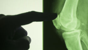 Knee joint xray test scan Royalty Free Stock Images
