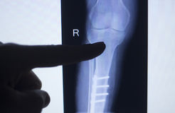 Knee joint xray test scan. Results of  patient with arthritis and joints pain in knees with implant Stock Images