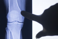 Knee joint xray test scan. Results of  patient with arthritis and joints pain in knees on screen with surgeon Royalty Free Stock Image