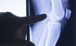 Knee joint xray test scan Royalty Free Stock Image