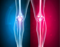 Knee joints healthy and unhealthy Royalty Free Stock Image