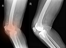 Knee and knee with total replacement x-ray image ob black background. X-ray showing OA knee and knee with total replacement x-ray image ob black background royalty free stock photography