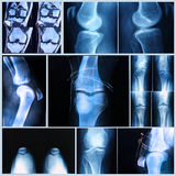 Knee medical exam: X-ray and MRI scan Stock Photography
