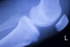 Knee and meniscus injury xray scan Royalty Free Stock Images