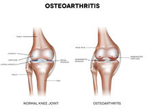 Knee Osteoarthritis Royalty Free Stock Image