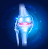 Knee Osteoarthritis abstract blue background Stock Photos