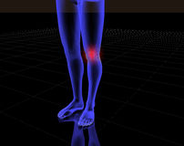 Knee and pain. Image x-ray of knee with red pain royalty free illustration