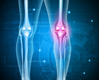 Knee pain abstract background Stock Image