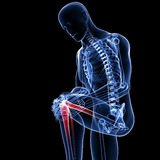 Knee pain in black Stock Photography