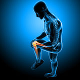 Knee pain of male Royalty Free Stock Photo