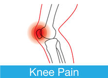 Knee pain outline. Outline of knee and bone which have pain. This is medical illustration Stock Photos