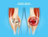 Knee Pain Realistic Vector Anatomical Illustration royalty free illustration