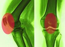 Knee pain, X-Ray Royalty Free Stock Photo