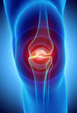 Knee painful - skeleton x-ray. Knee painful - skeleton x-ray, 3D Illustration medical concept Royalty Free Stock Photography