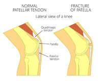 Knee  problem_Fracture of patella. Vector illustration of a healthy knee joint and an unhealthy knee with a fracture of patella problem. Anatomy of the human Royalty Free Stock Image