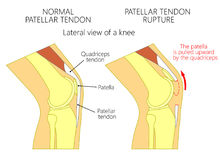 Knee  problem_Patellar tendon rupture. Vector illustration of a healthy knee joint and an unhealthy knee with a  patellar tendon rupture problem. Anatomy of the Royalty Free Stock Photography