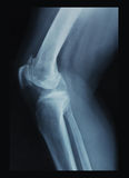 Knee x-ray. X-ray film of knee joint Stock Photography