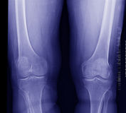 Knee x-ray Stock Images