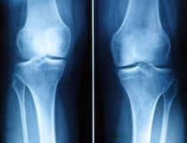 Knee x-ray. X-ray film of knee royalty free stock image