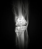 Knee X-ray Arteries, Bones Stock Photo