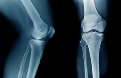 Knee x-ray on black background. X-ray OA knee x-ray on black stock image