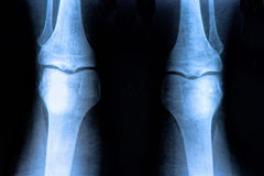 Knee X-ray. X-Ray image of the human knee royalty free stock photo
