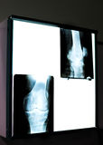Knee X-ray. X-ray image of human knee with missing cartilage Royalty Free Stock Photo