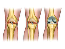 Knee replacement. Healthy knee anatomy, degenerative arthritis of the knee and replacement surgery. Digital illustration Royalty Free Stock Image