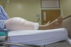 Knee replacement incision Stock Image