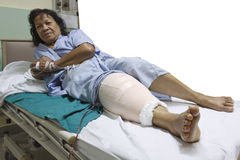 Knee replacement incision Royalty Free Stock Image
