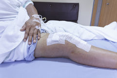 Knee replacement incision Royalty Free Stock Images