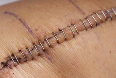 Knee replacement surgery. Close up of metal staples used to stitch up skin in a replacement knee surgery operation Stock Photos