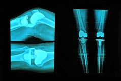 Knee replacement xray. View of knee replacement xray Stock Images