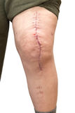 Knee with scar, isolated on white Royalty Free Stock Images