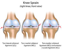 Knee sprain. Ligaments involved in knee sprains, eps8 Stock Images