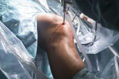 Knee surgery hospital operation stock image