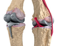 Knee and titanium hinge joint. Stock Photography
