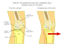 knee_Torn先前十字形韧带的韧带 库存图片